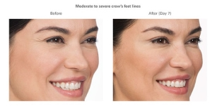 Botox Before and After 5 | Burbank Botox